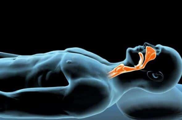Illustration 3D de l'apnée du sommeil